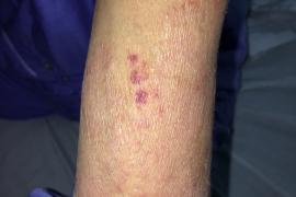 Nhân một trường hợp bệnh nhân nhiễm ba loại ký sinh trùng